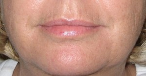 Dermal Fillers from Dr Jeremy Hunt